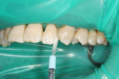 剤 歯科 用 接着