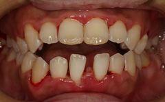 重度の歯石沈着の除去を行いました。歯周病 2016.07.14