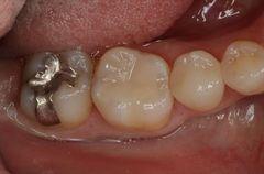 右下第一大臼歯のメタルインレーを除去してセラミック修復しました。2018.08.25