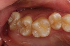 歯根未完成の右上親知らずを抜歯しました。2018.09.20