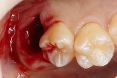 右上の親知らずの抜歯から1ヶ月経過しました。2018.10.27