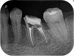 左下奥歯のメタルコアとヤスリのカケラを取り除き再根管充填を行いました。