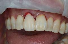 破折し歯根吸収した右上前歯を抜歯しソケットプリザーベーションしました。2018.11.27