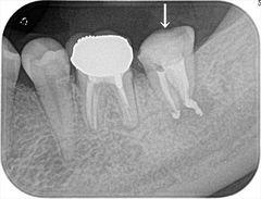 痛みがあり膿が大量に出ていた左下奥歯の根管治療を終えました。2019.05.18