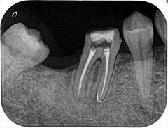 右下奥歯の水酸化カルシウム根充を再根管治療しました。2019.06.01