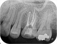 歯の周囲約1/3が失われていた奥歯の根管治療を行いました。2019.06.19