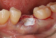 割れた左下奥歯の抜歯と骨を増やす処置を行いました。2019.05.25