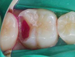 右下奥歯のむし歯をセラミック治療しました。2019.06.08
