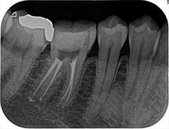 右下第一大臼歯(奥歯)の根管治療をやり直しました。2019.07.11