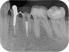 左下小臼歯のかぶせものと金属ネジを除去しました。2019.07.11