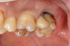 頬側からむし歯になっていた左上奥歯をセラミック治療しました。2019.07.16