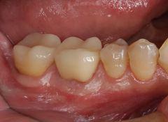 根管治療のヤスリを外科的に除去した歯の治療が完成しました。2020.02.15