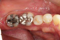 左下大臼歯2本の金属を除去してセラミック治療を行いました。2020.02.22