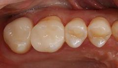 右上第一大臼歯のセラミックワンデイ治療を行いました。2020.03.21