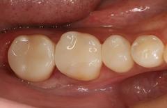 右下第二大臼歯の金属を除去してe.max修復しました。2020.10.17