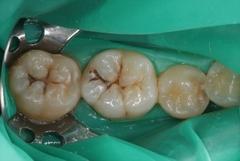 右下大臼歯のむし歯をコンポジットレジン充填しました。2021.04.06